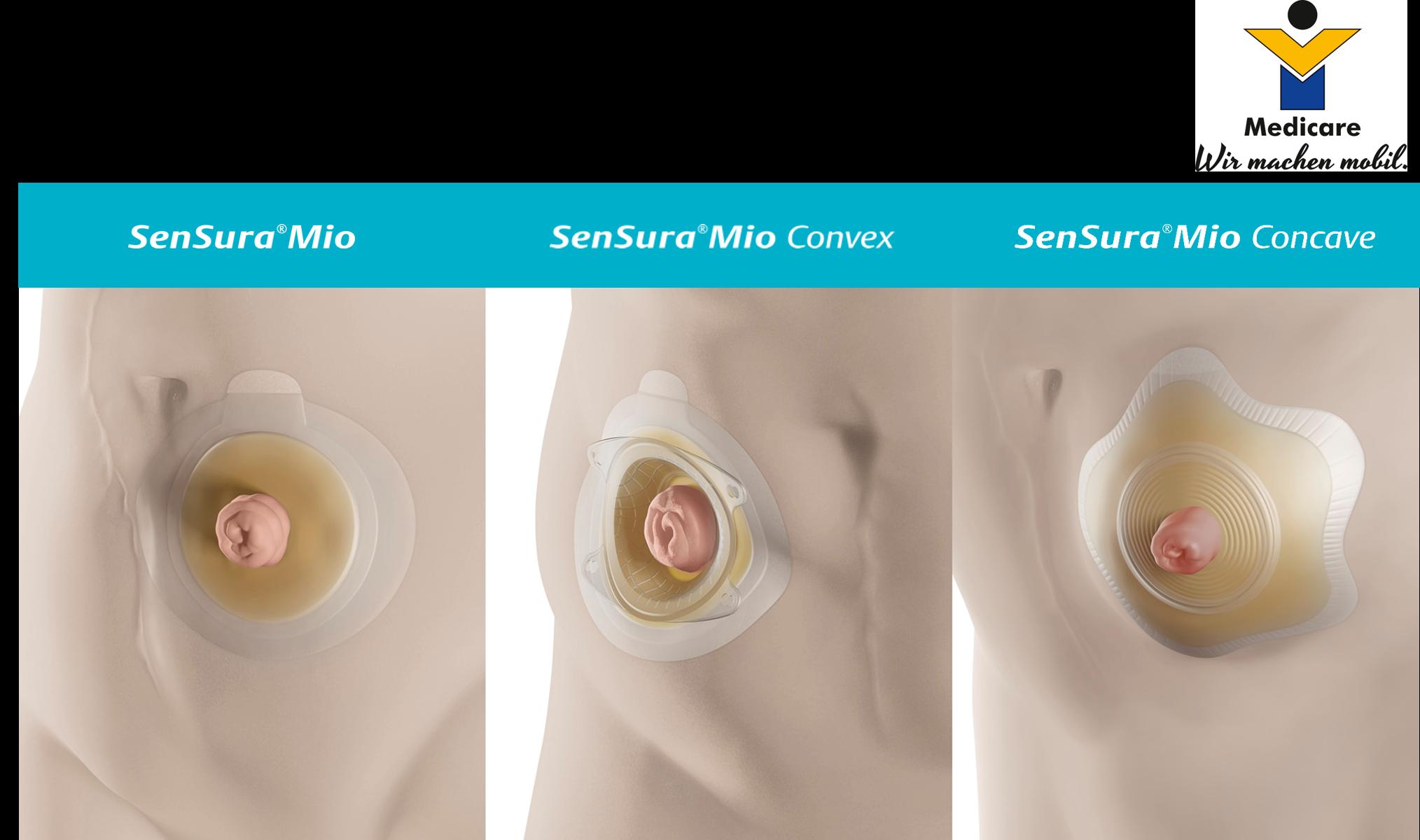 SenSura Mio - Stomaversorgung für individuelle Körperformen